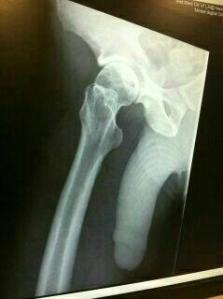 I like to ask people if they heard about Scott breaking his hip. Oh, here. I have his x-ray.